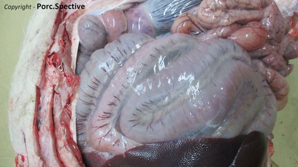 Photo 2. Edema of the mesentery of spiral colon