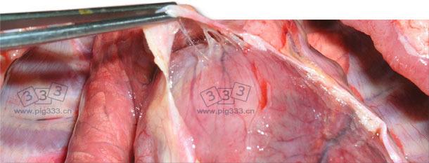 心外膜和心包之间纤维蛋白软而脆