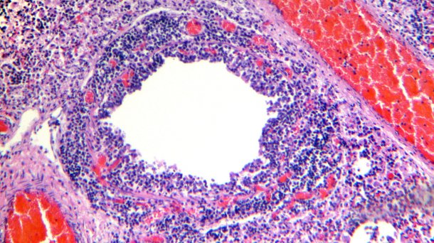 Figure 4. Bronchiole showing desquamation and necrosis of the respiratory epithelium, along with marked lymphocytic infiltration of the lamina propia and submucosa.