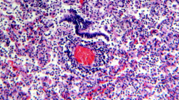 Figure 5. Perivascular lymphocyte infiltration.