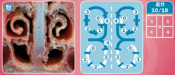 图6.以受重度AR影响的动物为例,对鼻部病变的评估。