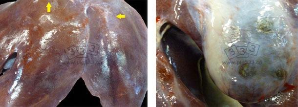 由于寄生虫移动形成的胆囊疤痕病变